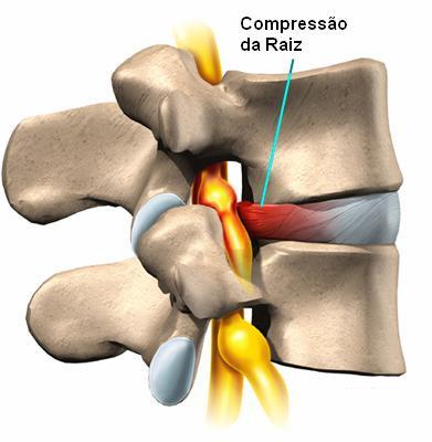 protusão disco hérnia vertebral copressão raiz nervosa fisioterapia higienópolis santa cecília