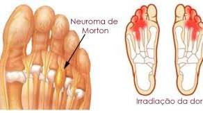 O que é Neuroma de Morton?