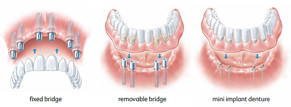 Full arch dental implant bridge examples