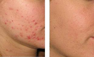 i_acne_2.jpg
