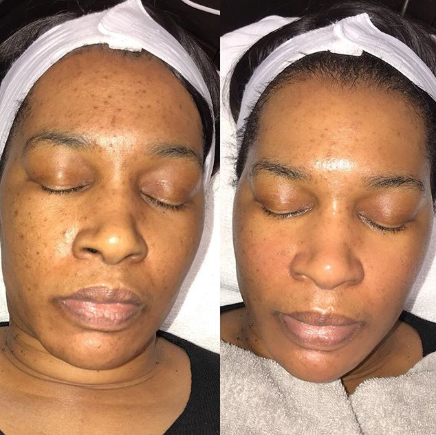 1hr classic facial focusing on extractio