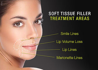 dermal-fillers-diagram.jpg