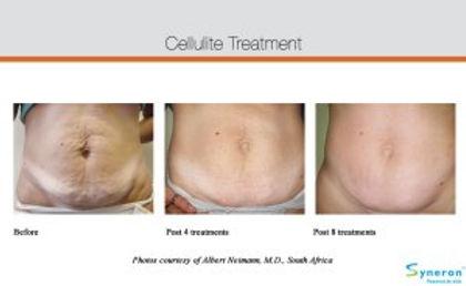 cellulite-ba-4_0.jpg