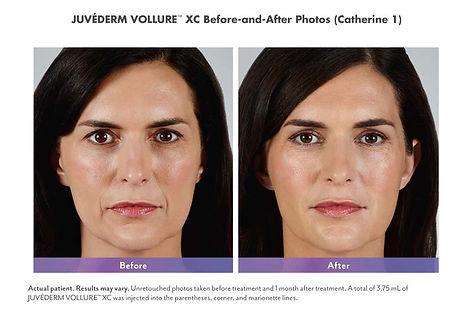 juvederm-before-after-3.jpg