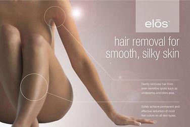 elos-hair-removal-1024x684.jpg