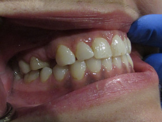 A Case Report: Using a Bridge to Replace a Missing Tooth