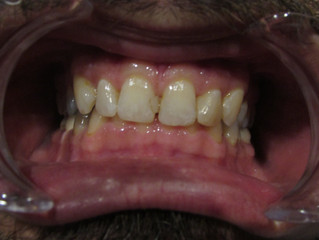 The Beauty of Tooth Colored Fillings