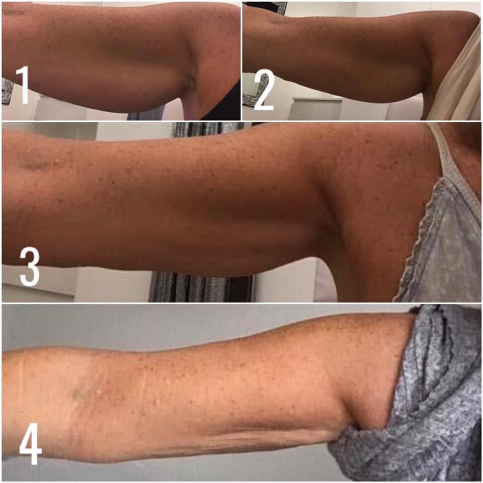 fat loss injection