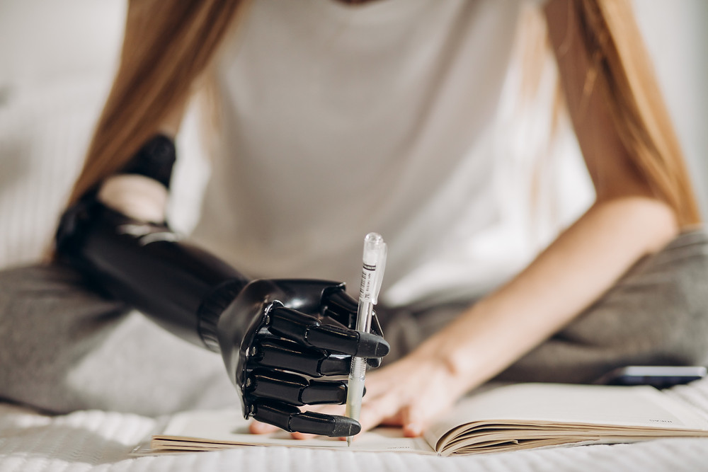 woman-prosthetic-arm-service-agreement-NDIS-notes