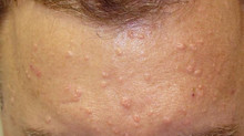Sebaceous Hyperplasia; Frequently Asked Questions