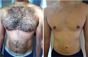 Laser Hair removal for men's chest
