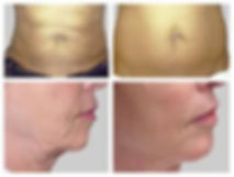 Skin tightening and body contouring
