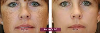 Photo facial for pigmentaion and pore reduction