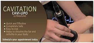 Ultrasoic Cavitation