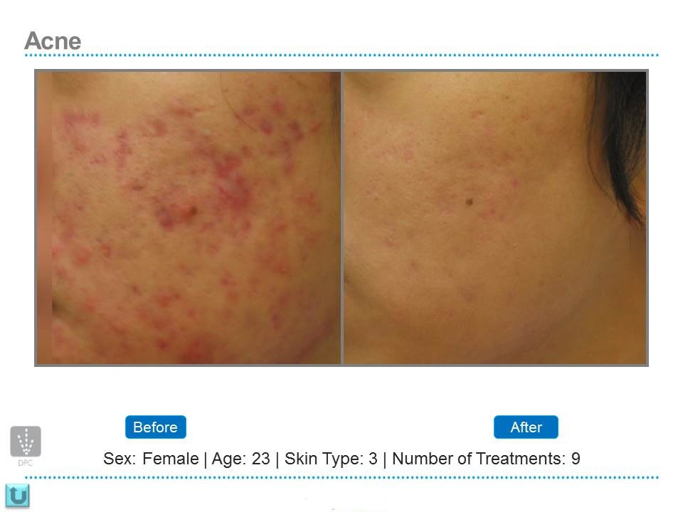 laser acne treatment, tulip laser clinic