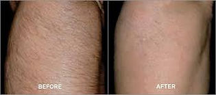 Laser Hair removal gor thighs