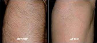 efficacy of laser hair removal for men