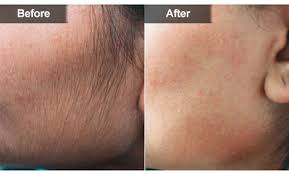 Laser hair removal on face