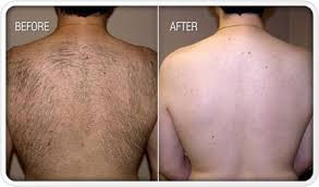 Laser Hair Removal, men's back