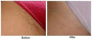 Laser Hair removal, Bikini line