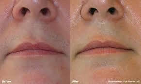 laser hair removal upper lip