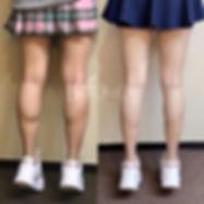 botox Xeomin瘦小腿香港價錢6.jpg
