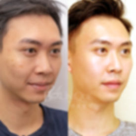 Before_After_2.jpg