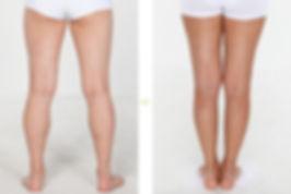 botox Xeomin瘦小腿香港價錢5.jpg