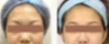 去眼袋手術4.jpg