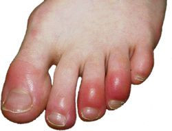 Do you suffer from cold painful toes during Winter?