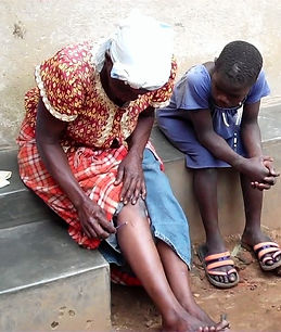 Uganda patient doing moxa
