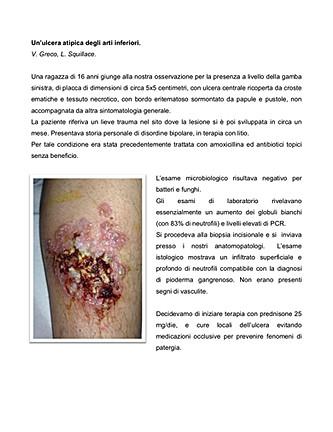Un'ulcera_atipica_degli_arti_inferiori..
