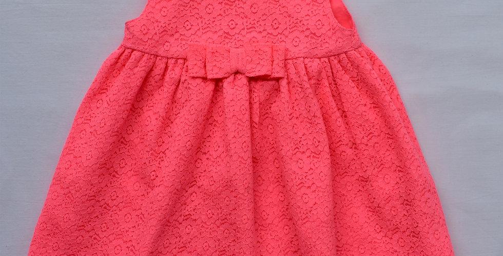 Neon šaty s mašľou