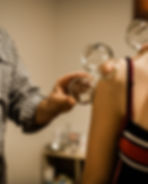 Cupping Therapy at Red Bridge Acupuncture Healesville