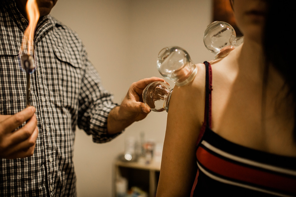 Cupping for Sporting Injury