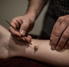 Scott Stephens applying moxa therapy