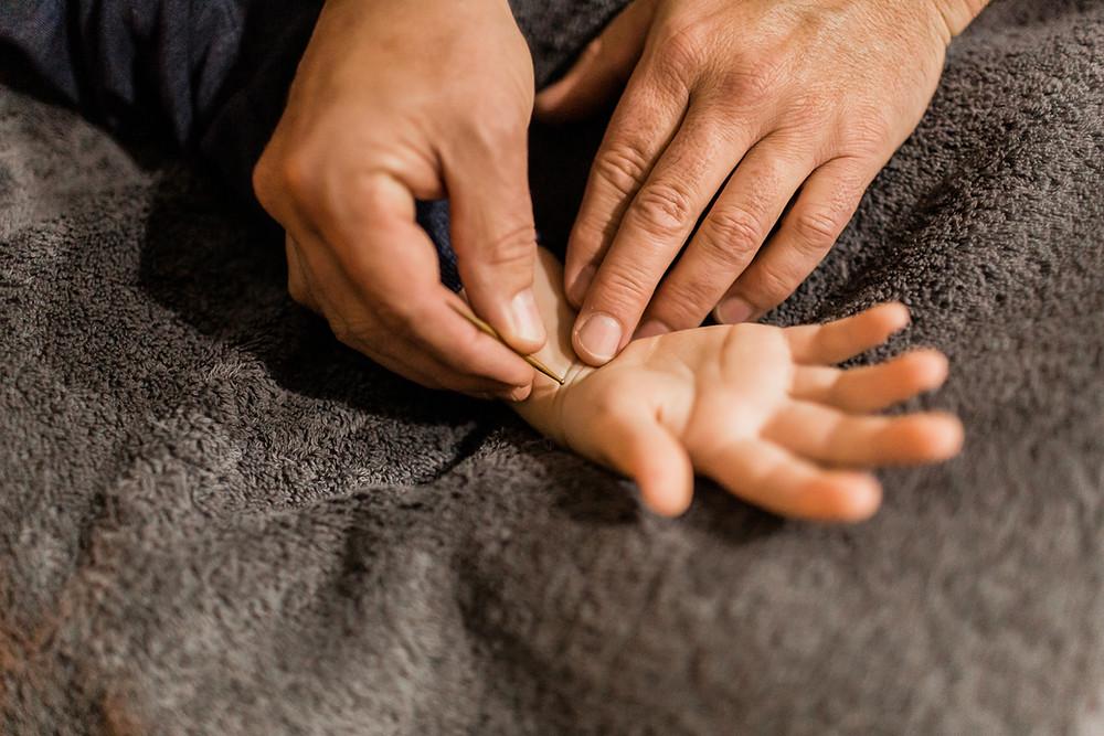 Shonishin treatment, Acupuncture, Kids Health