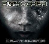 5 - Implant Rejection.jpg
