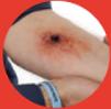 Velocity wound