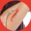 Incusion wound