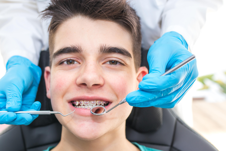 Ortodoncia (Tratamiento Completo)