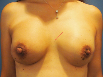 3 Things About Breast Cancer Treatment That Really Annoy Me