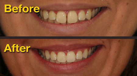 Invisalign before and after cases
