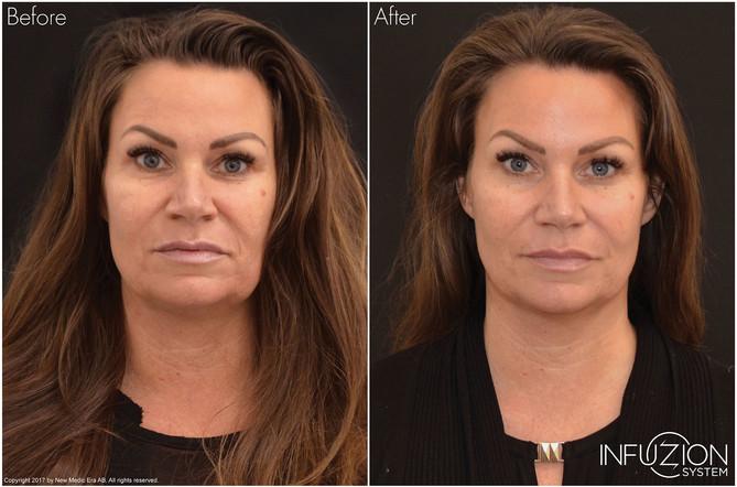 Madde-Before-and-After-medium.jpg