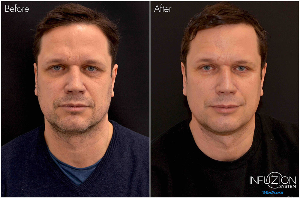 Kristian-before-after-Infuzion-liten.jpg