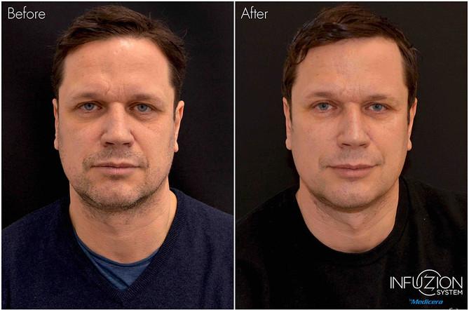 Kristian-before-after-Infuzion-liten.jpg