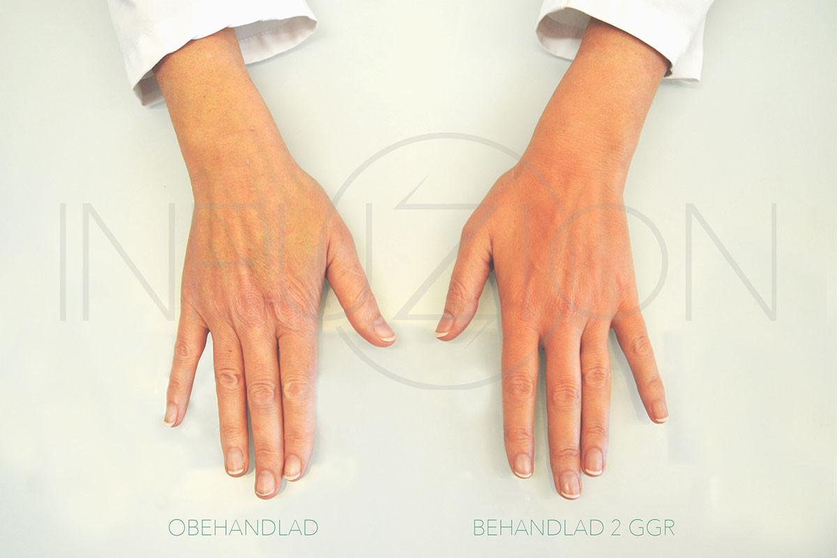 hander-infuzion-fore-efter-2x3.jpg