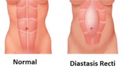 Phase Five - Diastasis Rectus