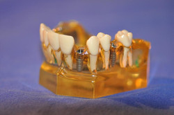 Implantate Modell1