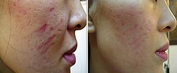 Microneedling - best scar treatment.jpg